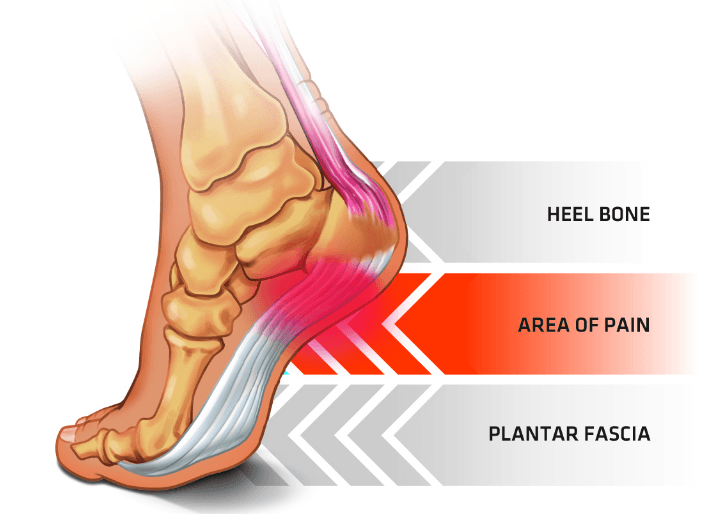 How to Deal with Plantar Fasciitis whilst Playing Football